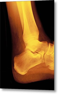 Normal Ankle Joint, X-ray Metal Print by Miriam Maslo