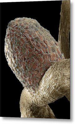 Root Nodule Metal Print by Dr Jeremy Burgess