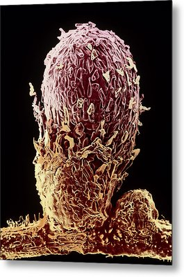 Root Nodule Of Pea Plant Metal Print by Dr Jeremy Burgess