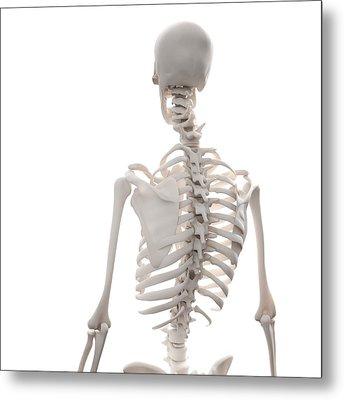 Skeleton, Artwork Metal Print by Andrzej Wojcicki