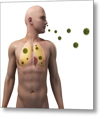 Viral Lung Infection, Conceptual Artwork Metal Print by Sciepro
