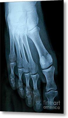 X-ray Image Of Mature Man's Feet Metal Print by Sami Sarkis