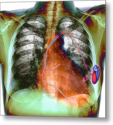 Heart Pacemaker, X-ray Metal Print by Du Cane Medical Imaging Ltd