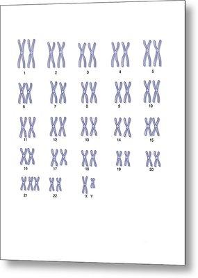 Male Down's Syndrome Karyotype, Artwork Metal Print by Peter Gardiner