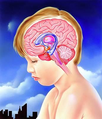 Brain And Childhood Depression Poster by John Bavosi