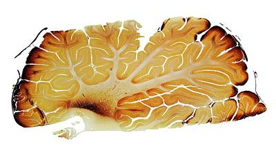 Cerebellum Poster by Dr Keith Wheeler