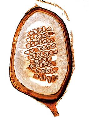 Fern (pilularia Sp.) Sporocarp Poster by Dr Keith Wheeler