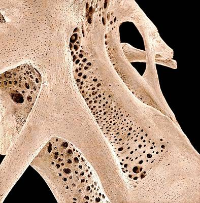 Fish Bone, Sem Poster by Science Photo Library