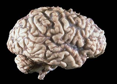 Human Brain Poster by Pr. M. Forest - Cnri