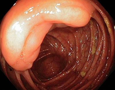 Ileocaecal Valve Poster by Gastrolab