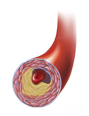 Normal Artery Compared To Plaque Poster by TriFocal Communications