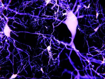 Pyramidal Neurons Poster by Juan Gaertner