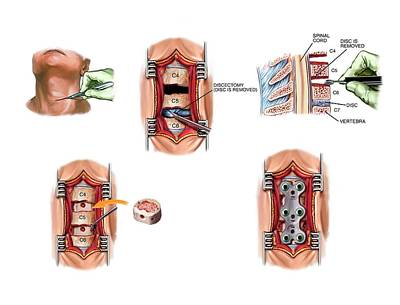 Surgery To Fuse The Cervical Spine Poster by John T. Alesi