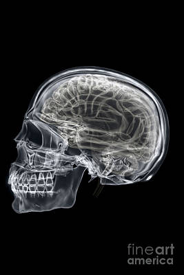 The Skull And Brain Poster by Science Picture Co