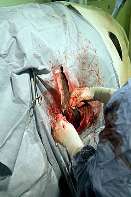Veterinarian Operating On A Cow Poster by Jim West