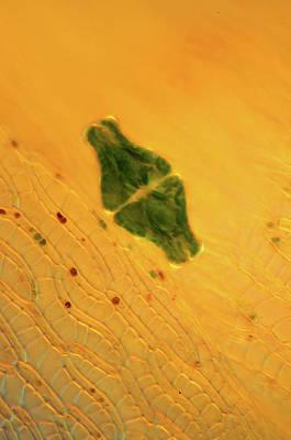 Desmid On Sphagnum Moss Poster by Marek Mis