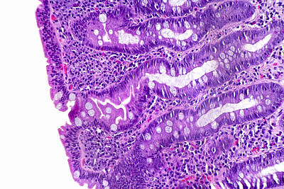 Intestinal Villi Of Celiac Disease Poster by Science Stock Photography