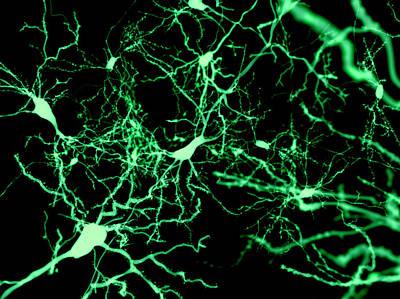 Nerve Cells Poster by Juan Gaertner