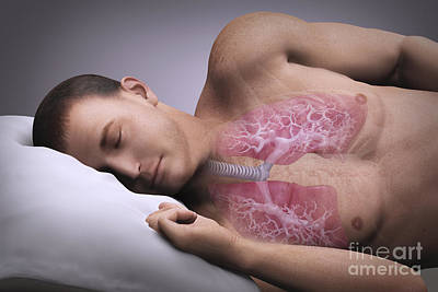Sleep Apnea Poster by Science Picture Co
