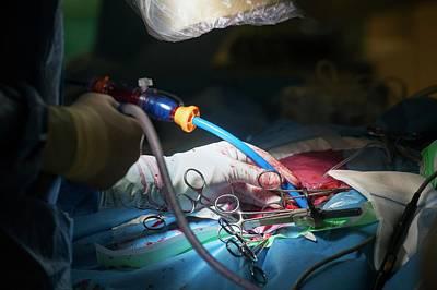 Cardiac Catheterization Poster by Arno Massee