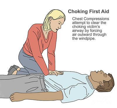 Choking First Aid Poster by Gwen Shockey
