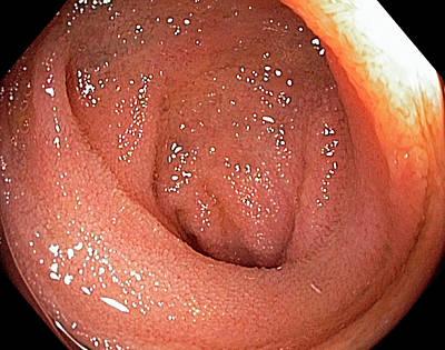 Small Intestine Poster by Gastrolab