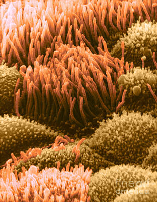 Trachea Lining Sem Poster by David M. Phillips