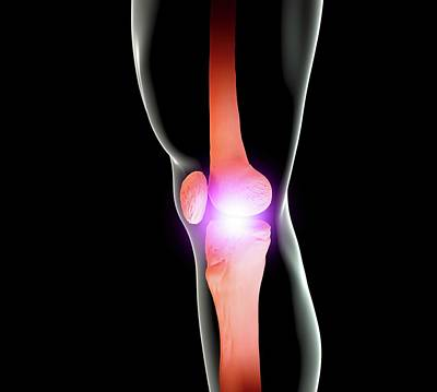 Knee Joint Poster by Science Artwork