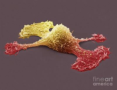 Metastasis Of A Cancerous Cell, Sem Poster by Steve Gschmeissner
