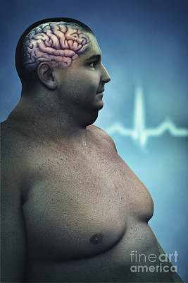 Obesity Poster by Science Picture Co