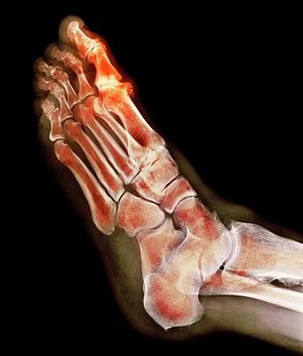 Degenerative Foot Deformation Poster by Dr P. Marazzi