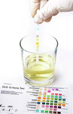 Urine Home Test Kit Poster by Cordelia Molloy