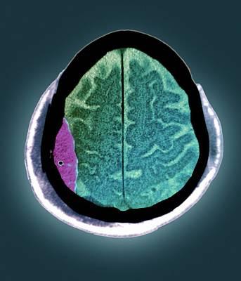 Brain Haemorrhage Poster by Zephyr