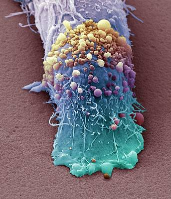 Skin Cancer Cell Poster by Steve Gschmeissner