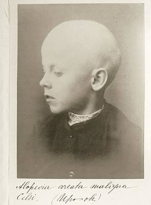 9 Year Old Boy With Alopecia Poster by National Library Of Medicine