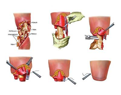 Above-knee Leg Amputation Poster by John T. Alesi