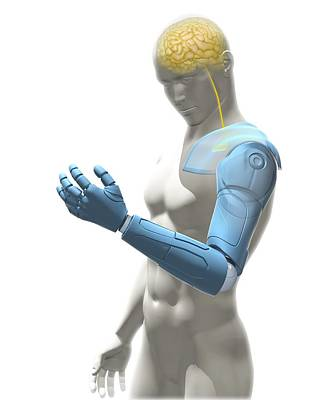 Bionic Arm, Artwork Poster by Science Photo Library