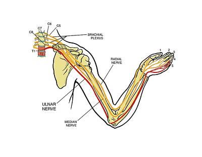 Brachial Plexus Arm Nerve Injury Poster by John T. Alesi