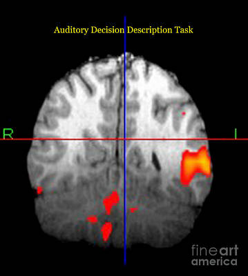 Brain Activity During Language Task, 3 Poster by Living Art Enterprises