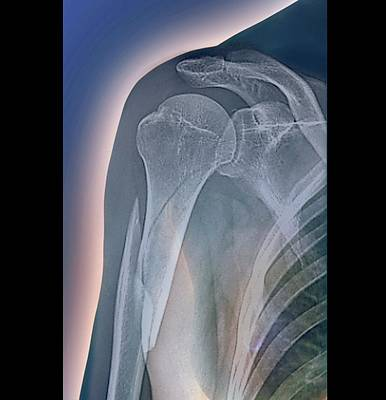 Broken Arm Poster by Zephyr