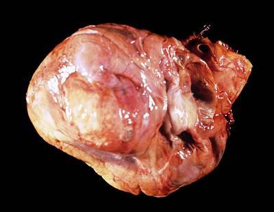 Cardiac Aneurism Poster by Pr. R. Abelanet - Cnri