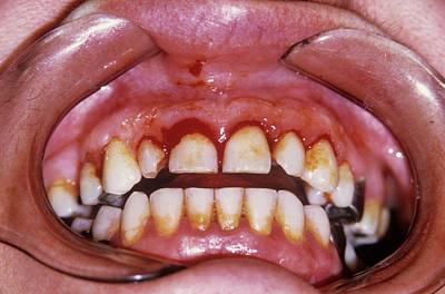 Dental Plaque And Gum Disease Poster by Dr. J.p. Casteyde/cnri