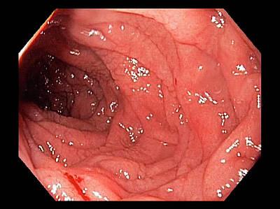 Duodenum In Coeliac Disease Poster by Gastrolab