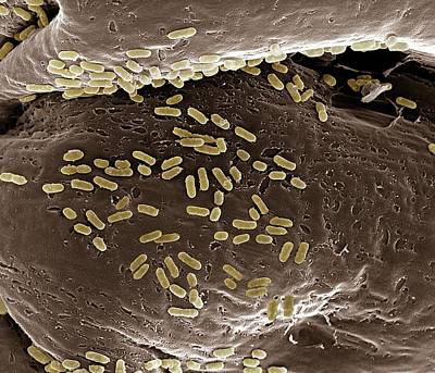 E. Coli On A Membrane Poster by Clouds Hill Imaging Ltd