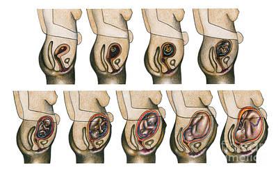 Fetal Development Poster by Gwen Shockey