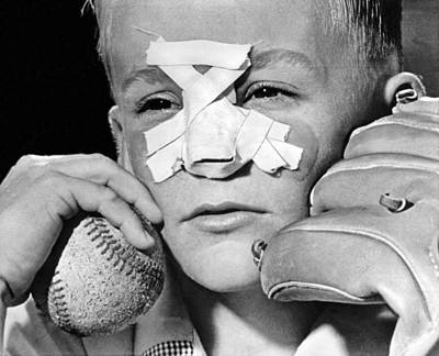Fly Ball Gives Broken Nose Poster by Underwood Archives
