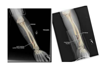 Fractured Ulna Bone And Fixation Poster by John T. Alesi