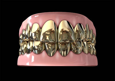Golden Gangster Teeth And Gums Poster by Allan Swart
