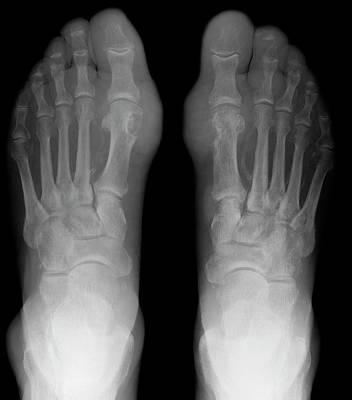 Gout Poster by Du Cane Medical Imaging Ltd