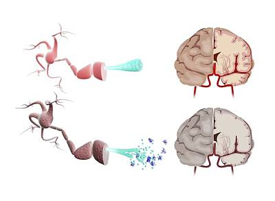 Healthy And Alzheimer's Brains Poster by Gunilla Elam